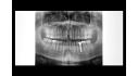 Máy chụp X-Quang toàn hàm Panoramic